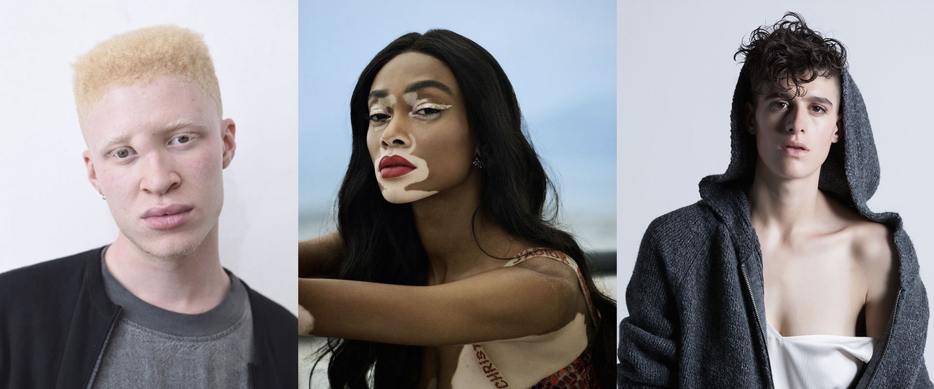 modelli-differenti, winnie harlow, rain dove, shaun ross